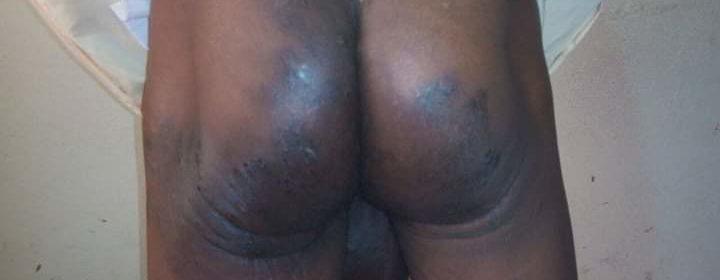 Burundi SNR torture