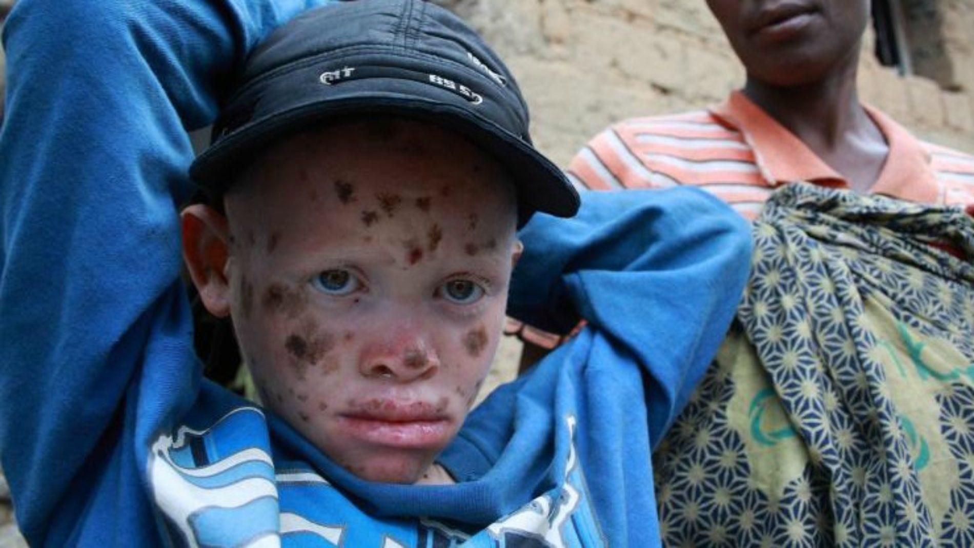 Cibitoke : sit-in devant le bureau du service national de renseignements pour demander justice pour Bonheur, l'albinos assassiné