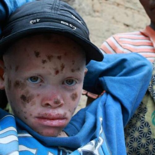 Burundi : 24 albinos tués en huit mois