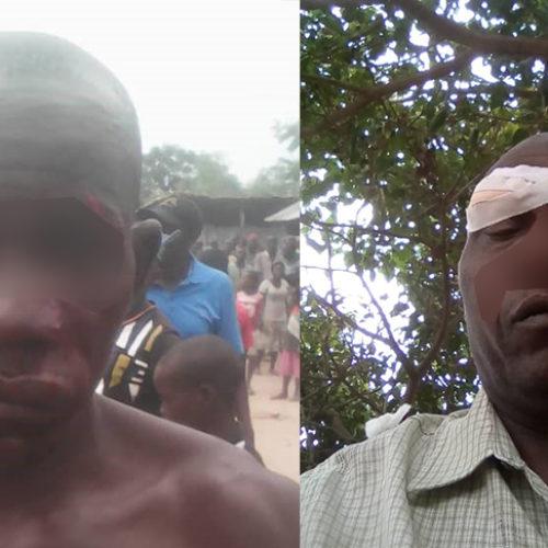Bubanza : Des échauffourées entre militants du CNL et du CNDD FDD font deux blessés à Buringa