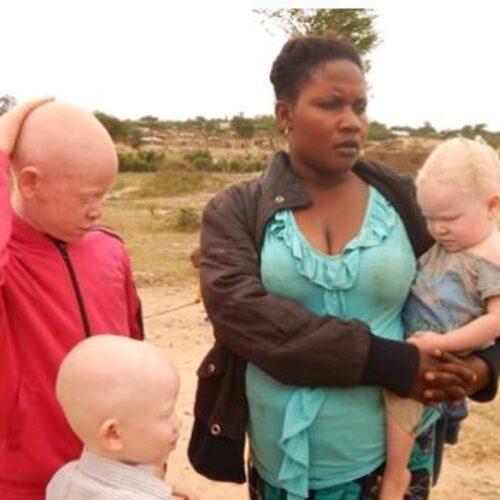 IMAGE de la semaine : les réfugiés burundais  albinos demandent  une assistance particulière