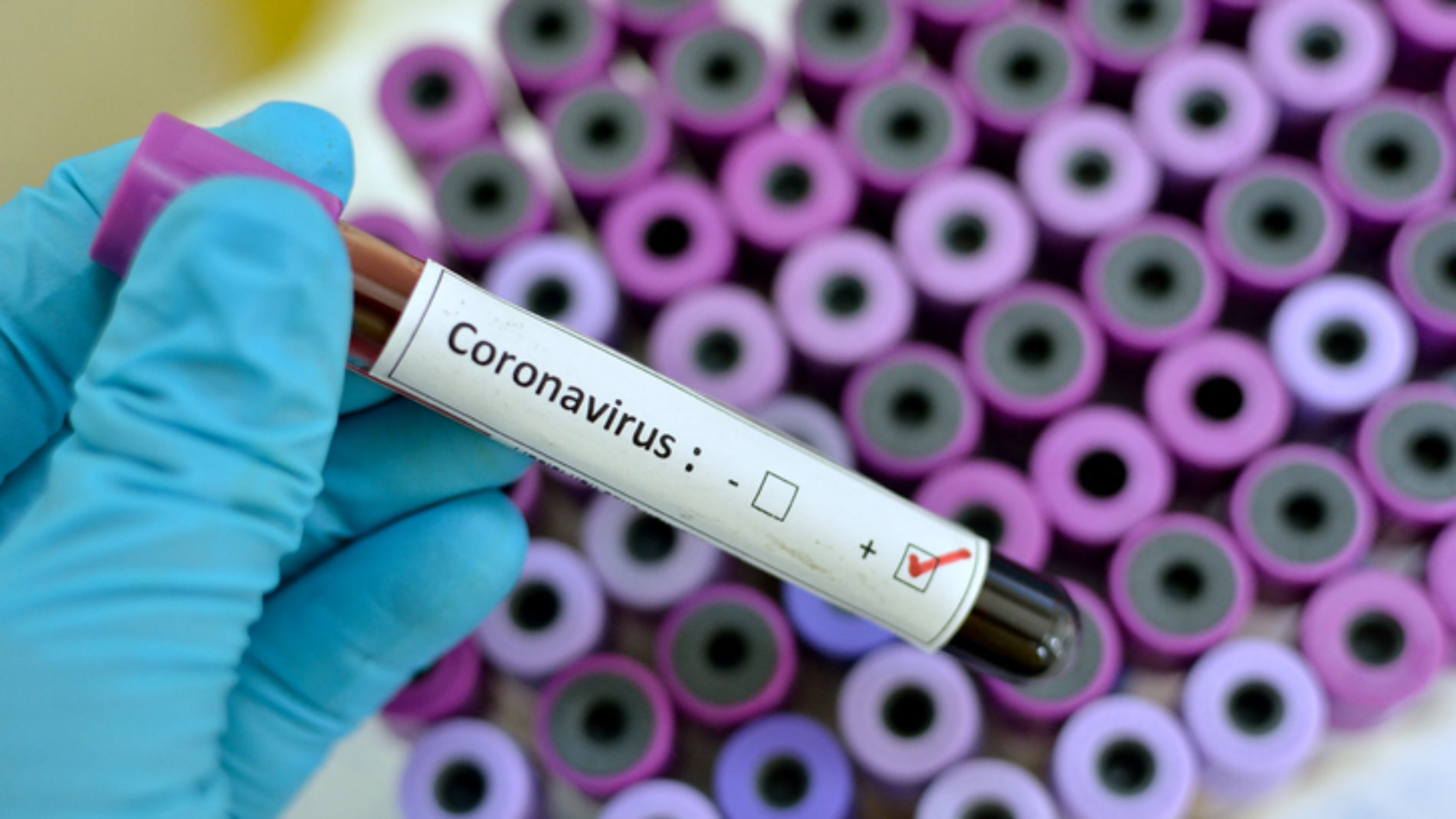 Covid-19 : le Burundi confirme cinq nouveaux cas