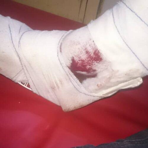 Burambi: des hommes armés attaquent, des Tutsis en paient le prix