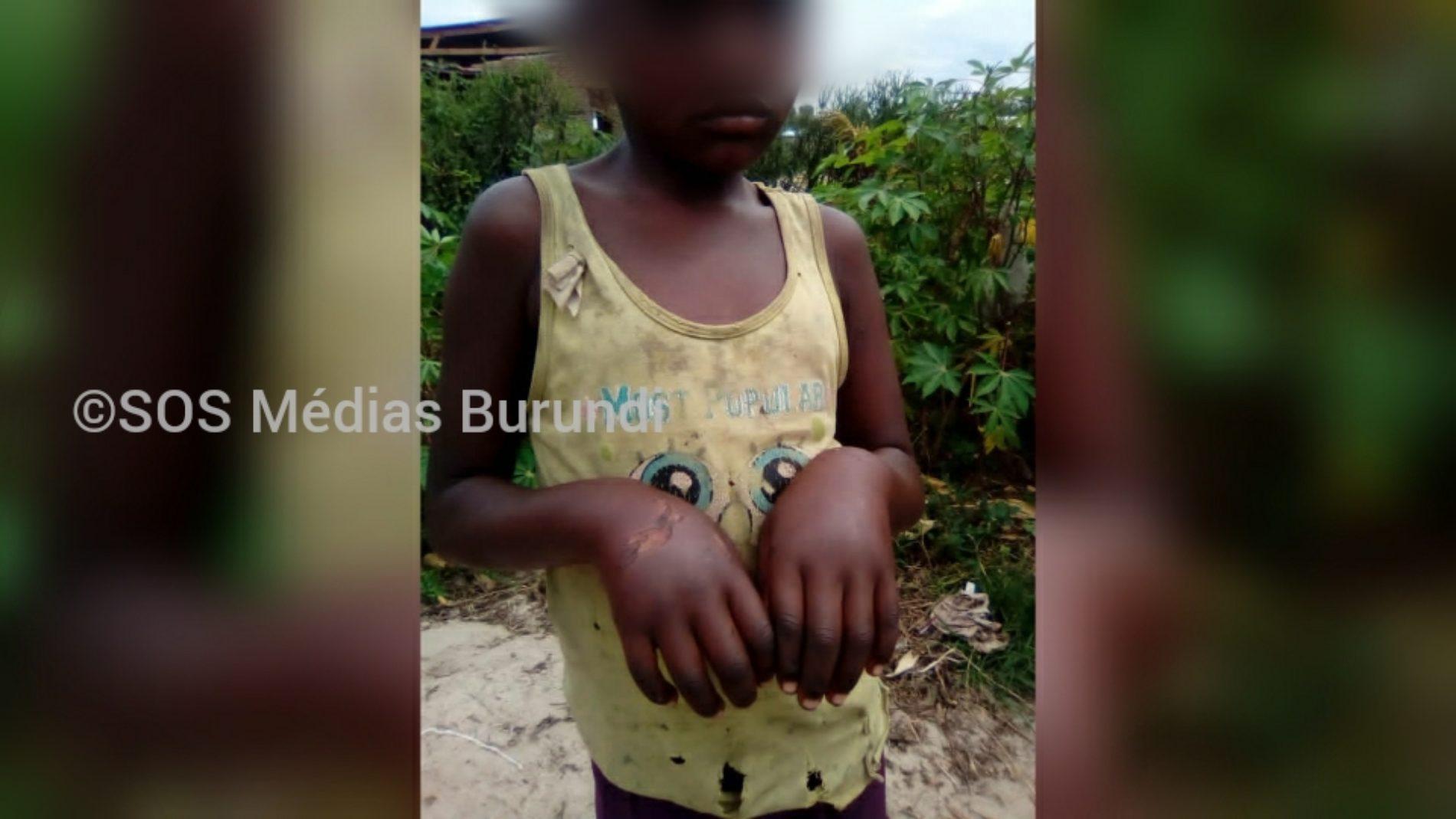 Gihanga : un chef de colline et membre de la ligue des Imbonerakure brûle une fillette, des habitants exigent qu'il soit puni