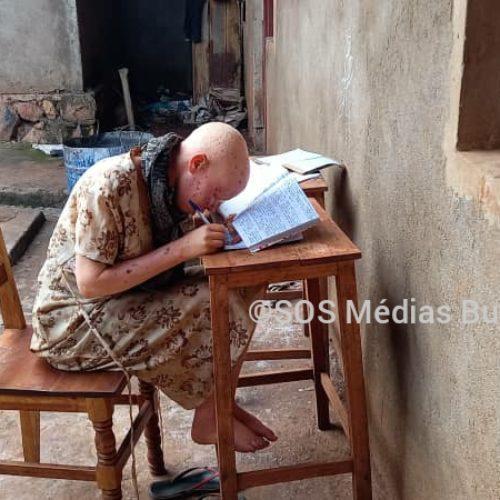 Gitega : l'association des albinos du Burundi sonne l'alerte